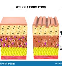 the appearance of wrinkles anatomical structure of the skin elastin hyaluronic acid  [ 1600 x 1239 Pixel ]