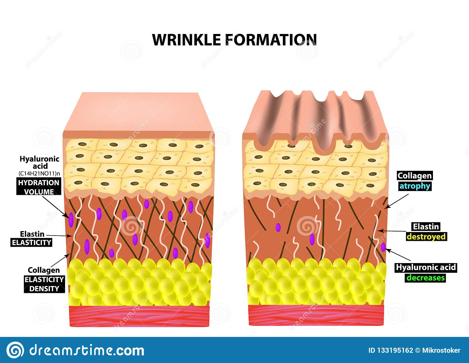 hight resolution of the appearance of wrinkles anatomical structure of the skin elastin hyaluronic acid