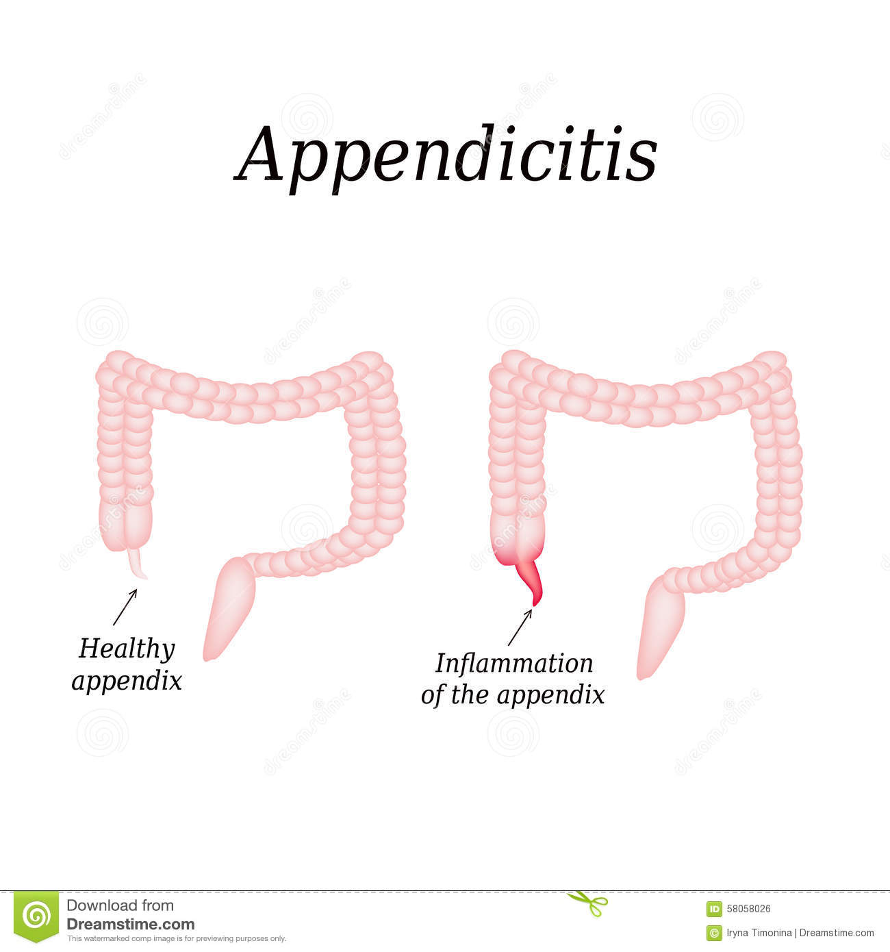 where are your appendix located diagram wiring diagrams give information about colon human body anatomy of intestine in