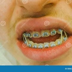 Rubber Bands Braces Diagram 3 Pickup Les Paul Wiring Bague Dentaire Avec Elastique  Bijoux à La Mode