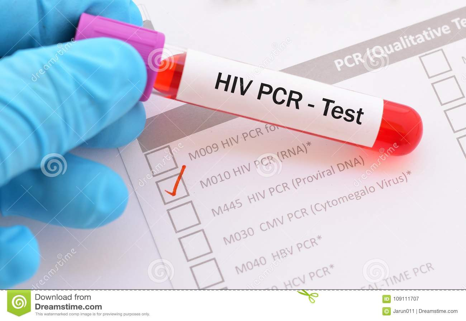 Blood Sample For Hiv Pcr Test Stock Image