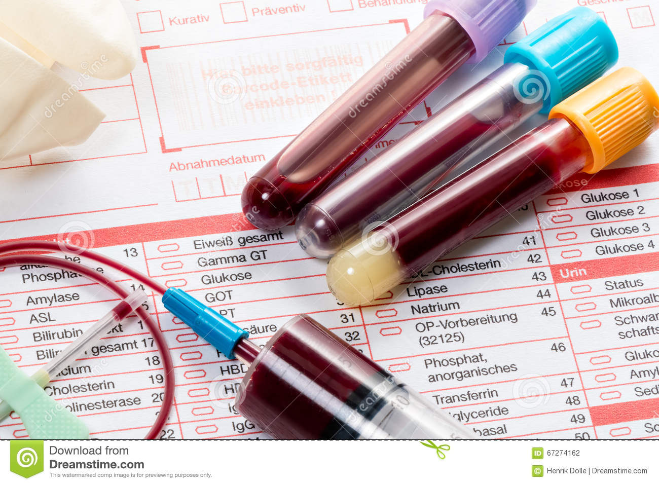 Blood Test Blood Samples On A Laboratory Form Stock Photo