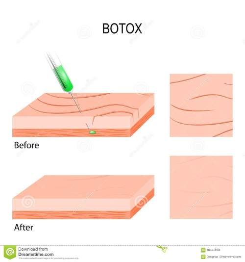 small resolution of botox cosmetic filler
