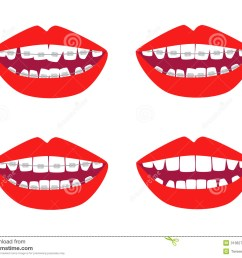 braces vector set dental braces clipart [ 1300 x 1067 Pixel ]