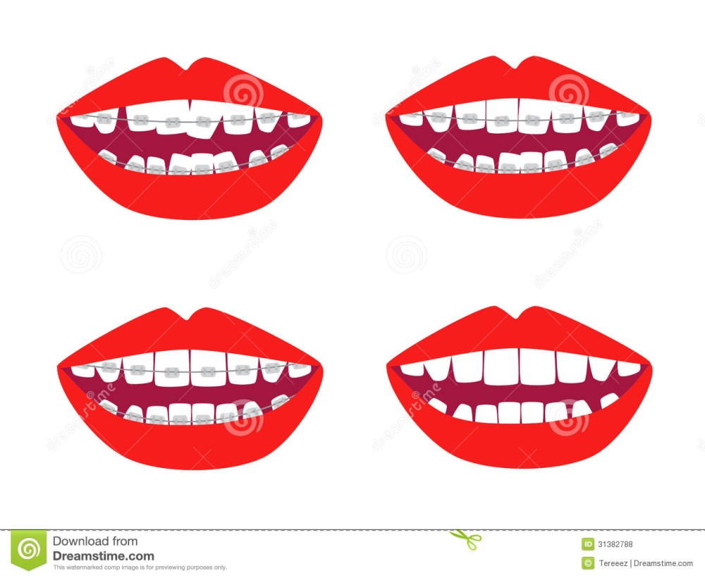 medium resolution of braces vector set dental braces clipart
