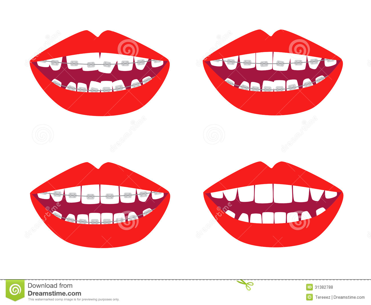 hight resolution of braces vector set dental braces clipart