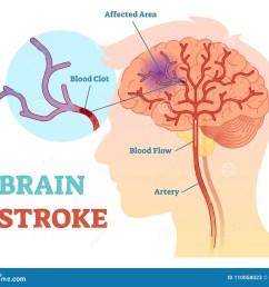 brain stroke anatomical vector illustration diagram scheme [ 1300 x 1122 Pixel ]