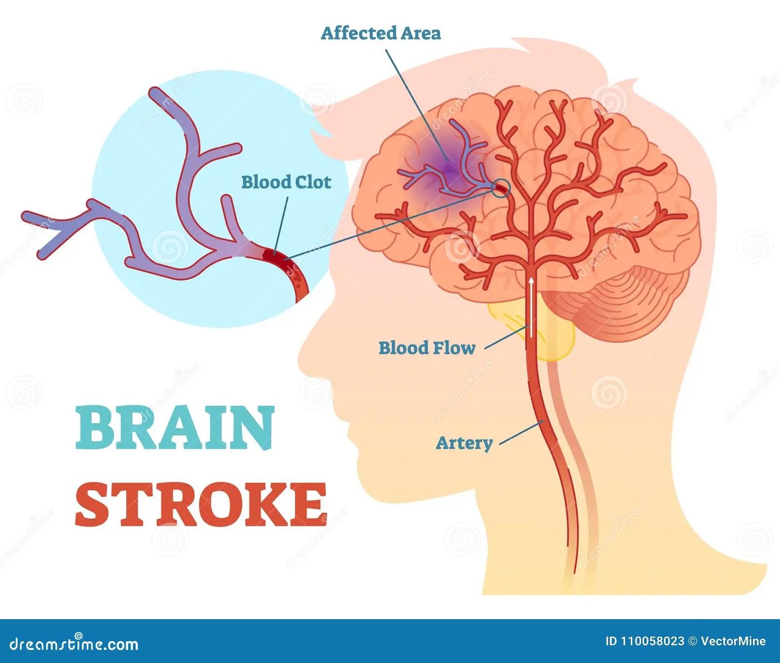 hight resolution of brain stroke anatomical vector illustration diagram scheme