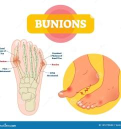 bunions vector illustration labeled feet bone disorder explanation scheme  [ 1600 x 1490 Pixel ]