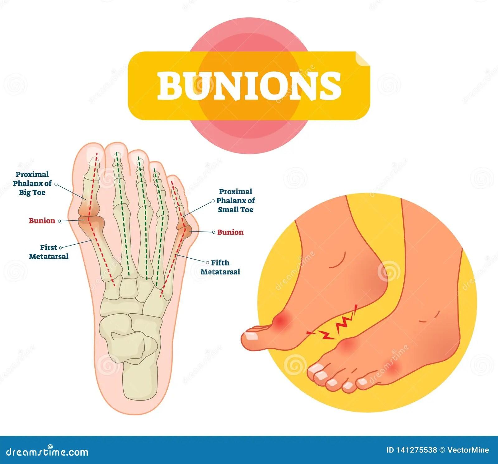 hight resolution of bunions vector illustration labeled feet bone disorder explanation scheme