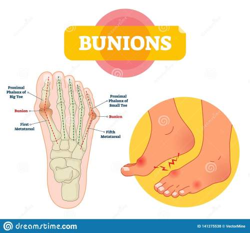 small resolution of bunions vector illustration labeled feet bone disorder explanation scheme