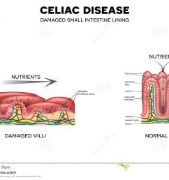 celiac disease affected small intestine villi unhealthy villi with damaged cells and healthy villi intestinal villi do not absorb nutrients because of  [ 1300 x 958 Pixel ]