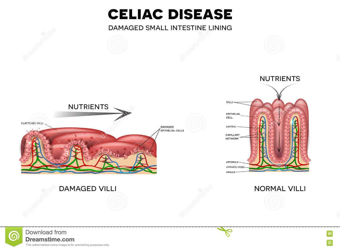 hight resolution of celiac disease affected small intestine villi unhealthy villi with damaged cells and healthy villi intestinal villi do not absorb nutrients because of