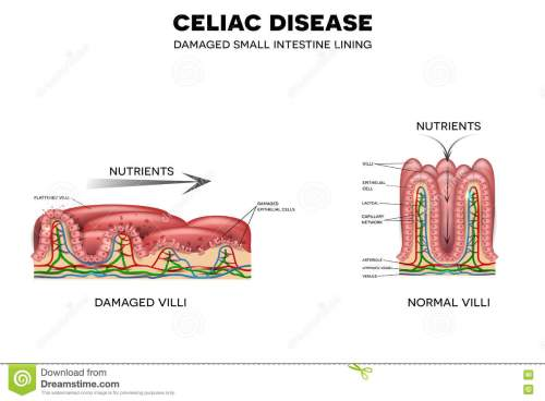 small resolution of celiac disease affected small intestine villi unhealthy villi with damaged cells and healthy villi intestinal villi do not absorb nutrients because of