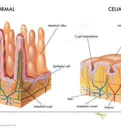 celiac intestine diagram wiring diagram imp celiac intestine diagram [ 1300 x 676 Pixel ]