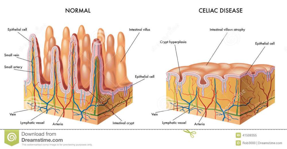 medium resolution of celiac intestine diagram wiring diagram imp celiac intestine diagram