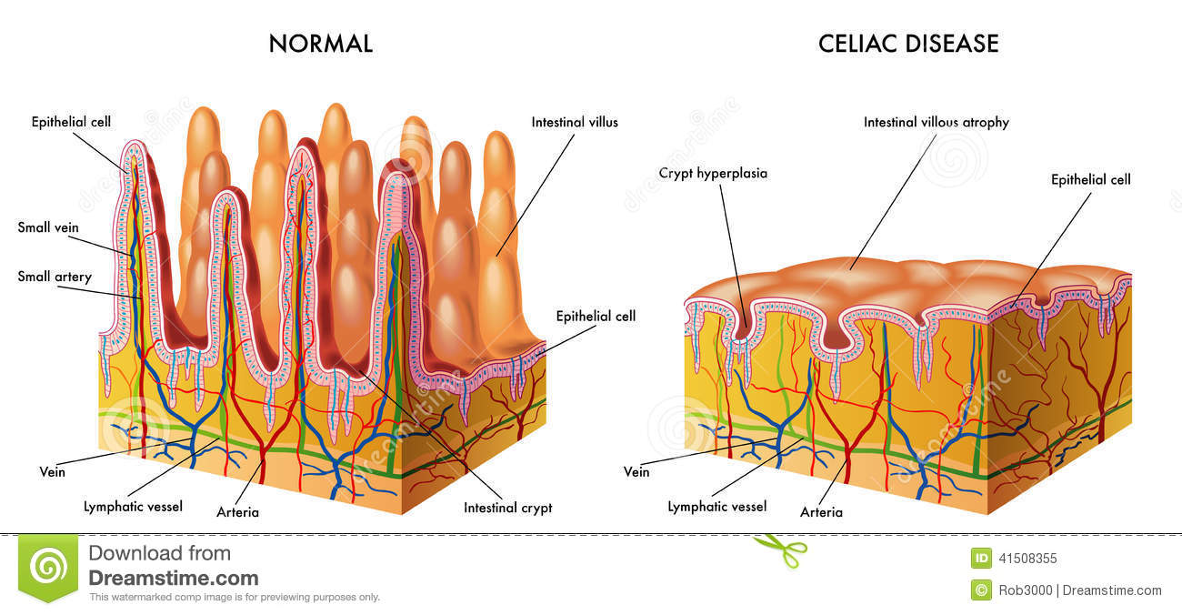 hight resolution of celiac intestine diagram wiring diagram imp celiac intestine diagram