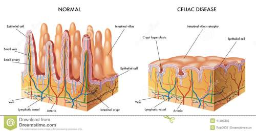 small resolution of celiac intestine diagram wiring diagram imp celiac intestine diagram