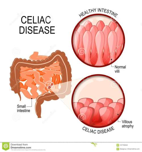 small resolution of celiac disease small intestinal with normal villi and villous atrophy diagram showing changes in intestinal coeliac disease manifested by blunting of