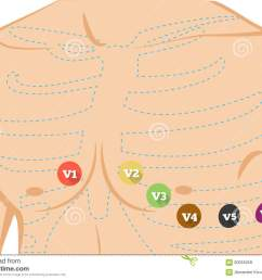 chest ecg leads placement illustration six colored electrocardiography leads [ 1300 x 1000 Pixel ]