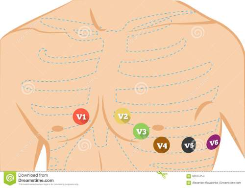small resolution of chest ecg leads placement illustration six colored electrocardiography leads