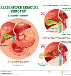 cholecystectomy gallbladder removal surgery anatomical vector illustration diagram with operative conditions  [ 1300 x 1200 Pixel ]