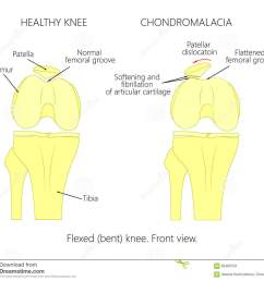 illustration diagram of normal knee joint and a knee with chondromalacia patella flexed bent knee front view  [ 1300 x 1173 Pixel ]