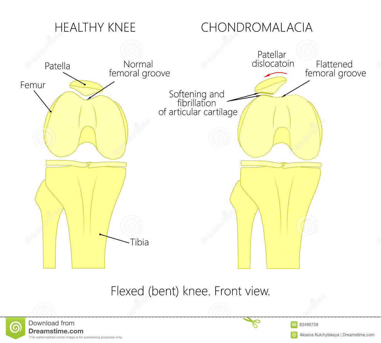 hight resolution of illustration diagram of normal knee joint and a knee with chondromalacia patella flexed bent knee front view