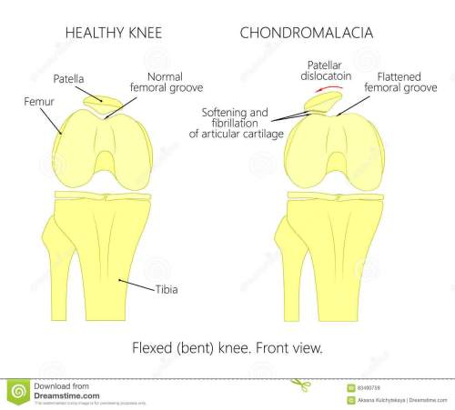 small resolution of illustration diagram of normal knee joint and a knee with chondromalacia patella flexed bent knee front view