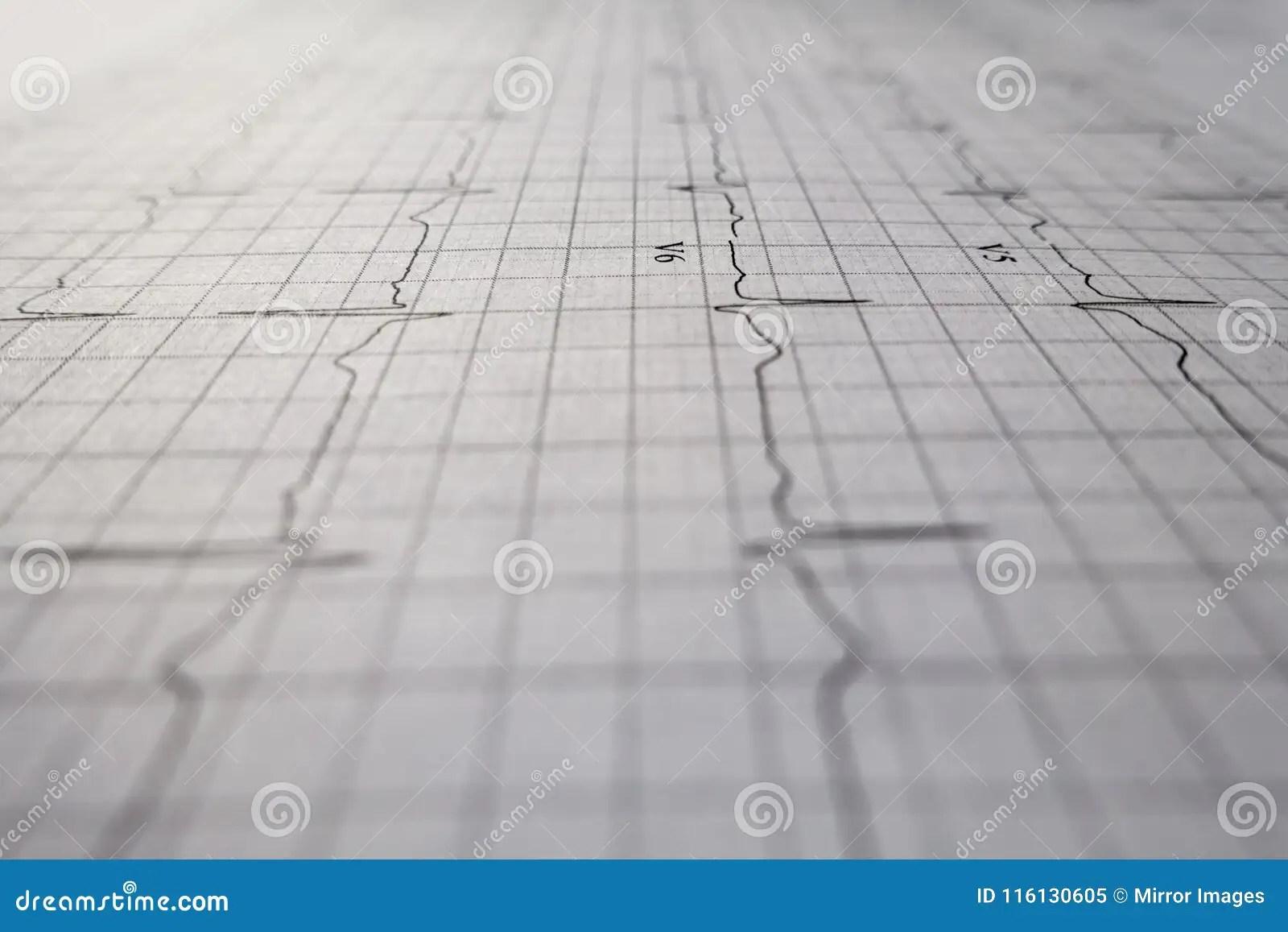 Close Up Ekg Heart Beat Test Stock Image