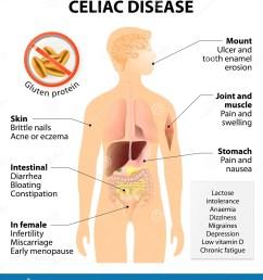 disease body diagram [ 1296 x 1300 Pixel ]