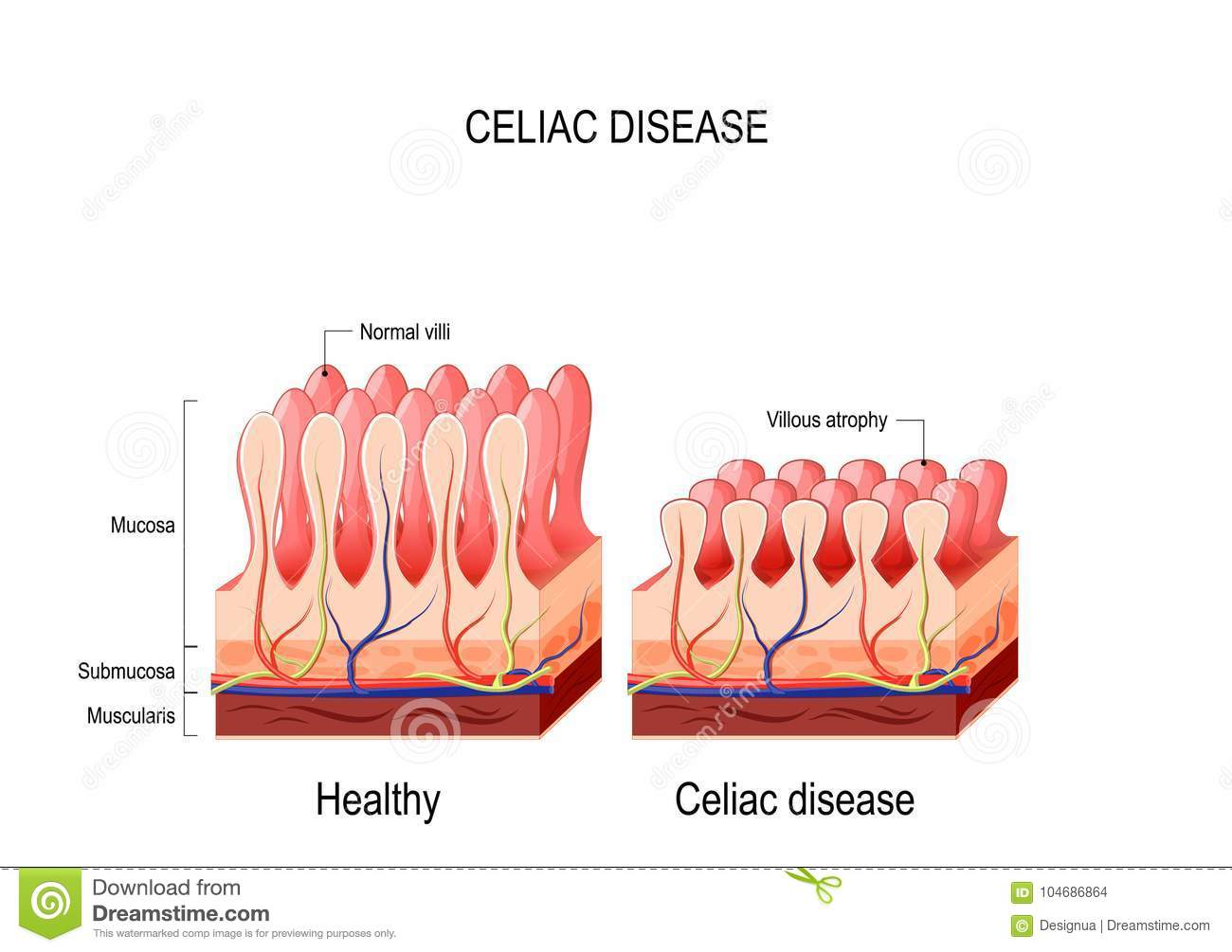hight resolution of coeliac celiac disease normal villi and villous atrophy small bowel showing coeliac disease manifested by blunting of vill vector diagram for medical use