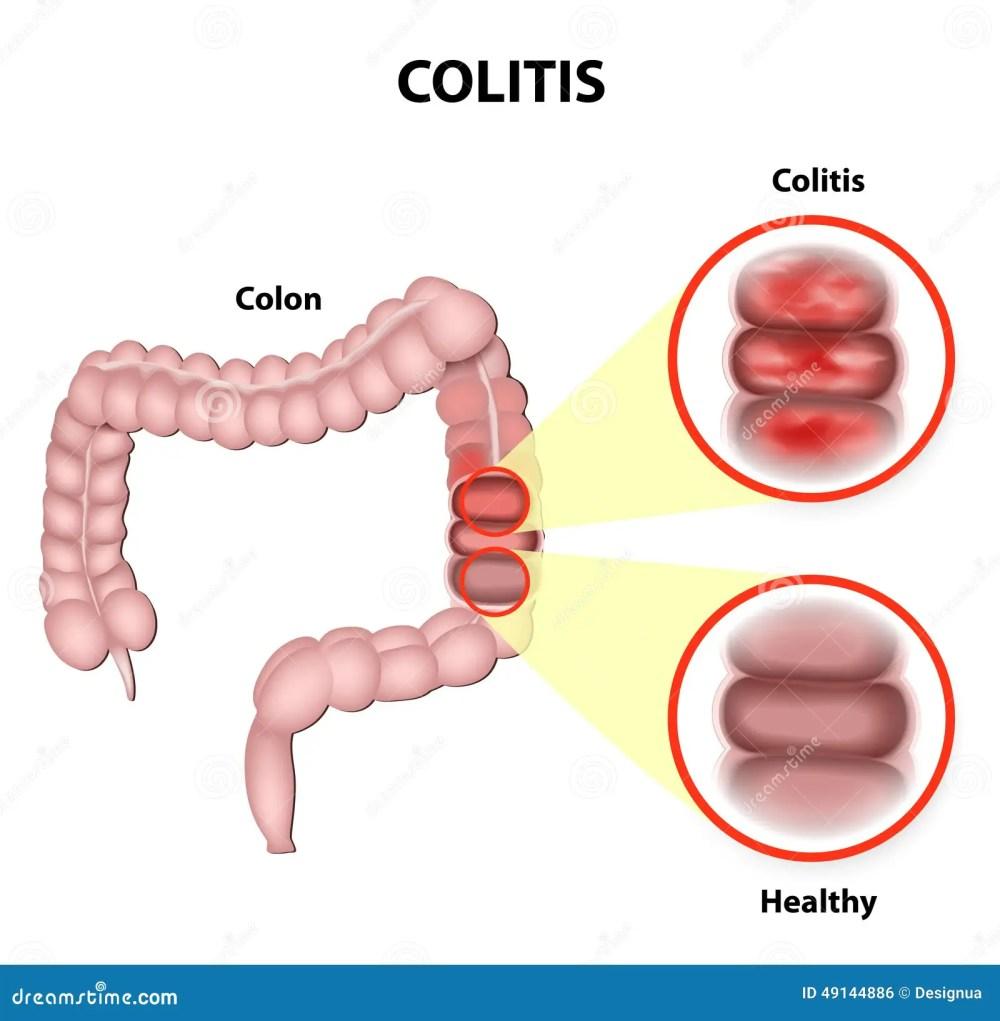 medium resolution of colitis stock illustrations 579 colitis stock illustrations vectors clipart dreamstime