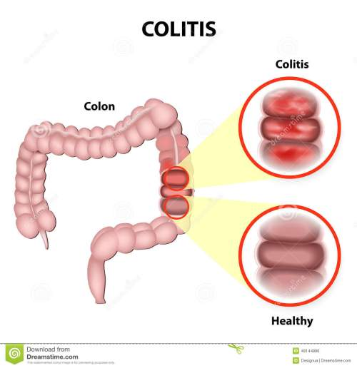 small resolution of colitis stock illustrations 579 colitis stock illustrations vectors clipart dreamstime