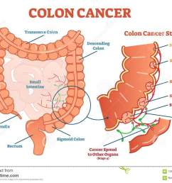 colon cancer medical vector illustration scheme anatomical diagram with cancer stages [ 1300 x 996 Pixel ]