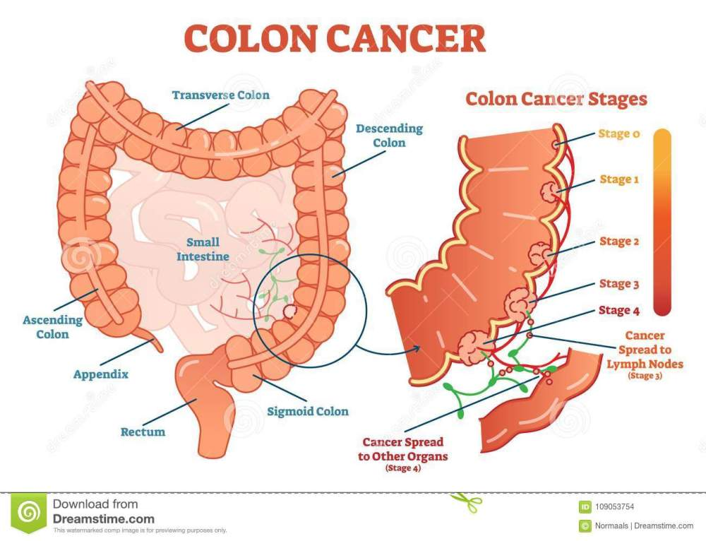medium resolution of colon cancer medical vector illustration scheme anatomical diagram with cancer stages