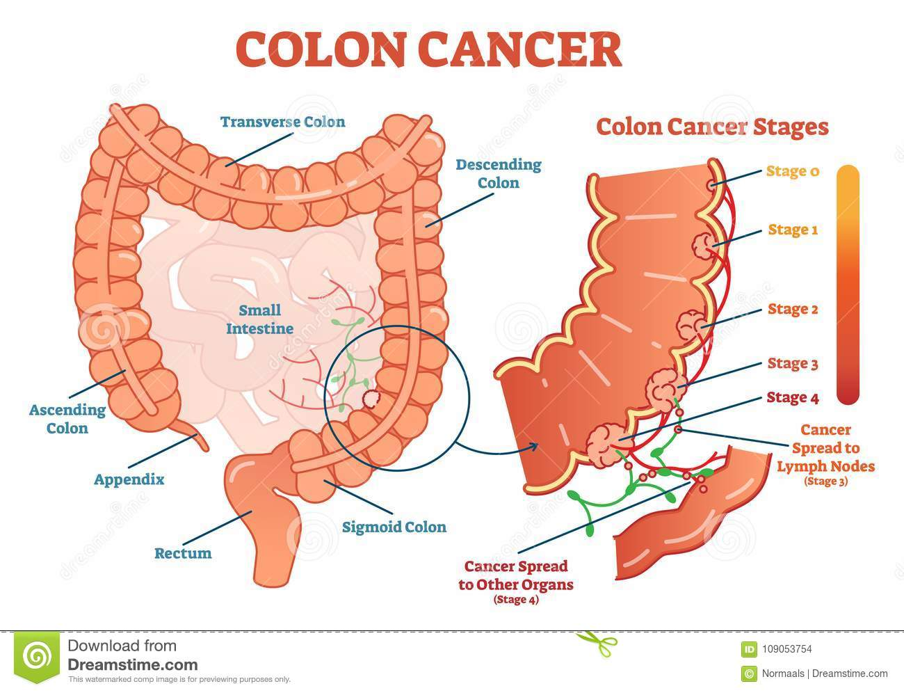 hight resolution of colon cancer medical vector illustration scheme anatomical diagram with cancer stages