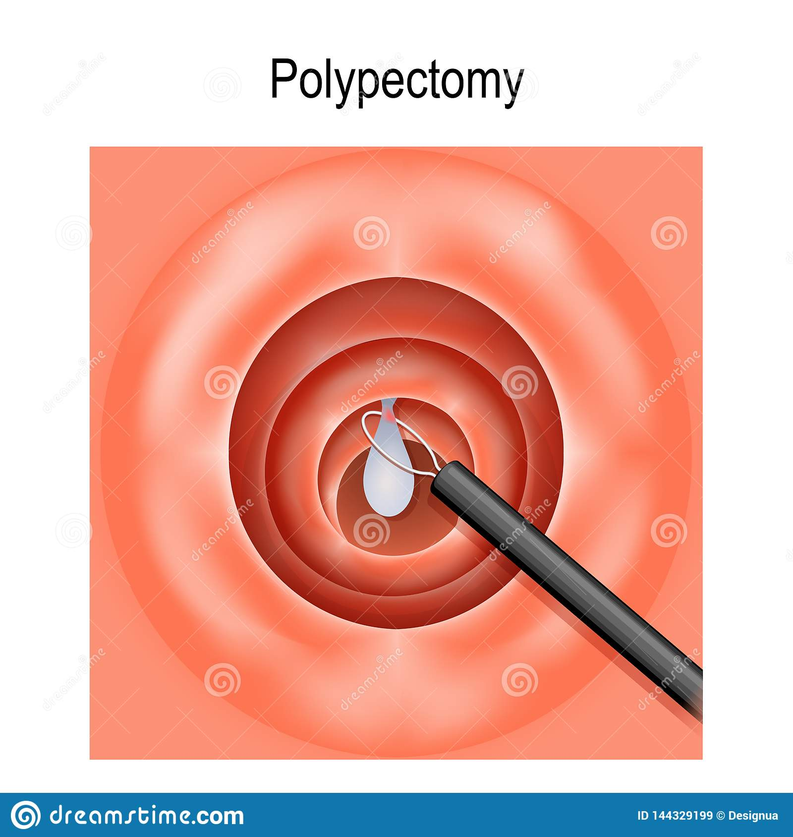 hight resolution of colorectal polyp and polypectomy vector diagram for medical biological and scientific use