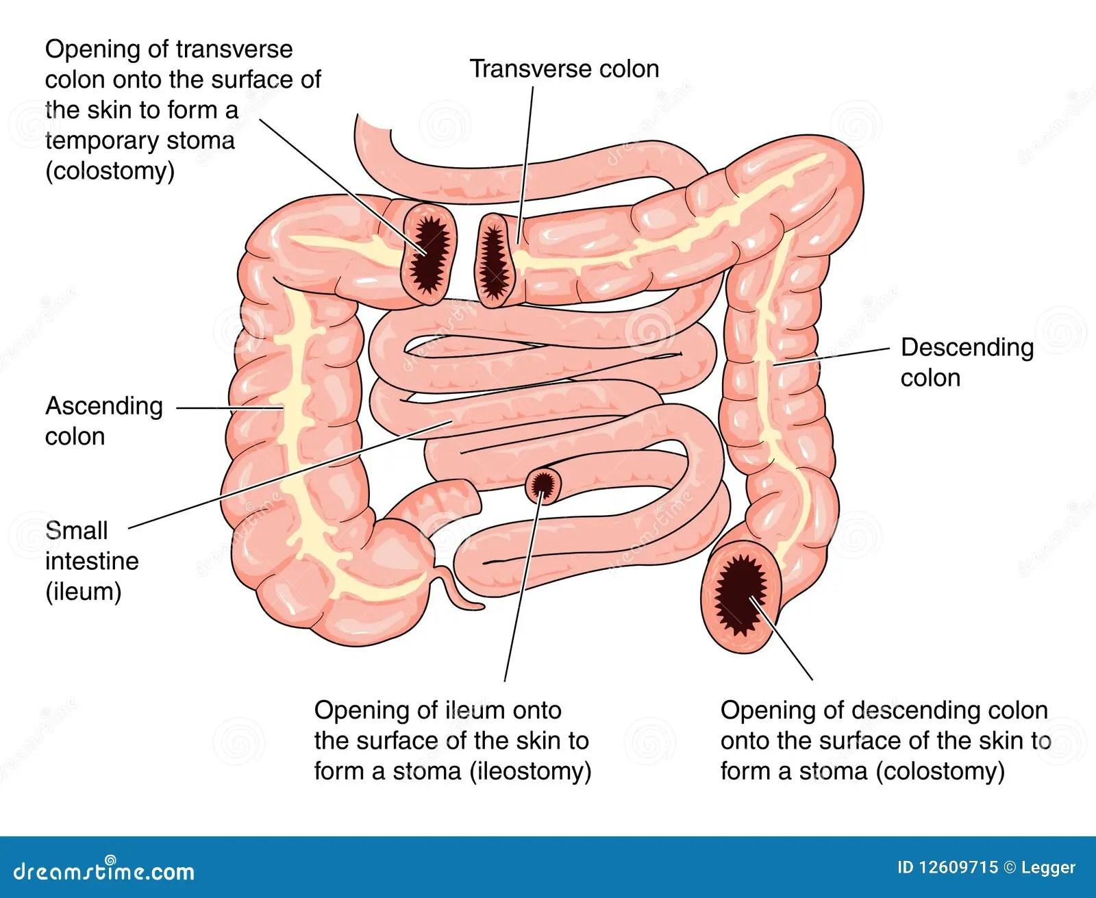 large intestine diagram blank spdt switch wiring colostomy sites stock vector illustration of ileostomy