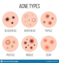 creative vector illustration types of acne pimples skin pores blackhead whitehead scar comedone stages diagram isolated on transparent background  [ 1600 x 1690 Pixel ]