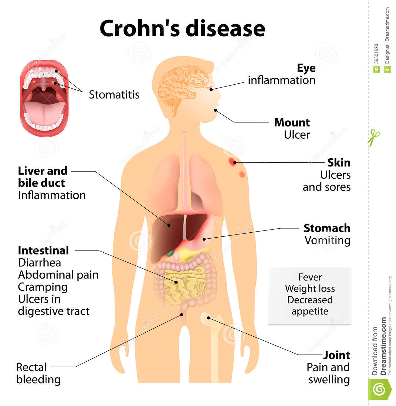 crohn s disease or syndrome and regional enteritis signs