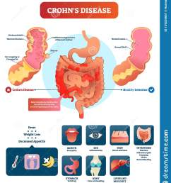 crohns disease vector illustration labeled diagram with diagnosiscrohns disease vector illustration labeled diagram with diagnosis [ 1382 x 1600 Pixel ]