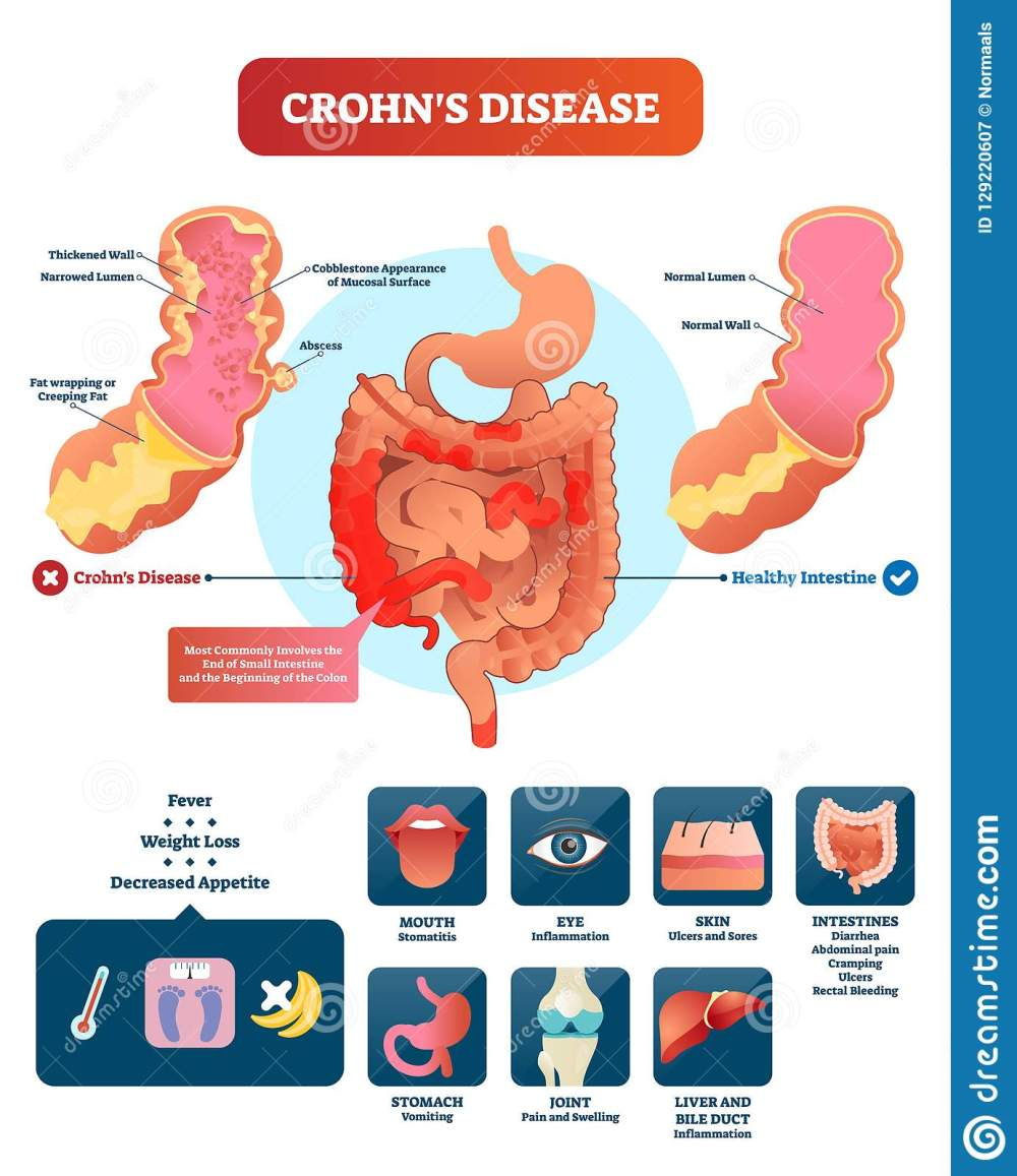 medium resolution of crohns disease vector illustration labeled diagram with diagnosiscrohns disease vector illustration labeled diagram with diagnosis