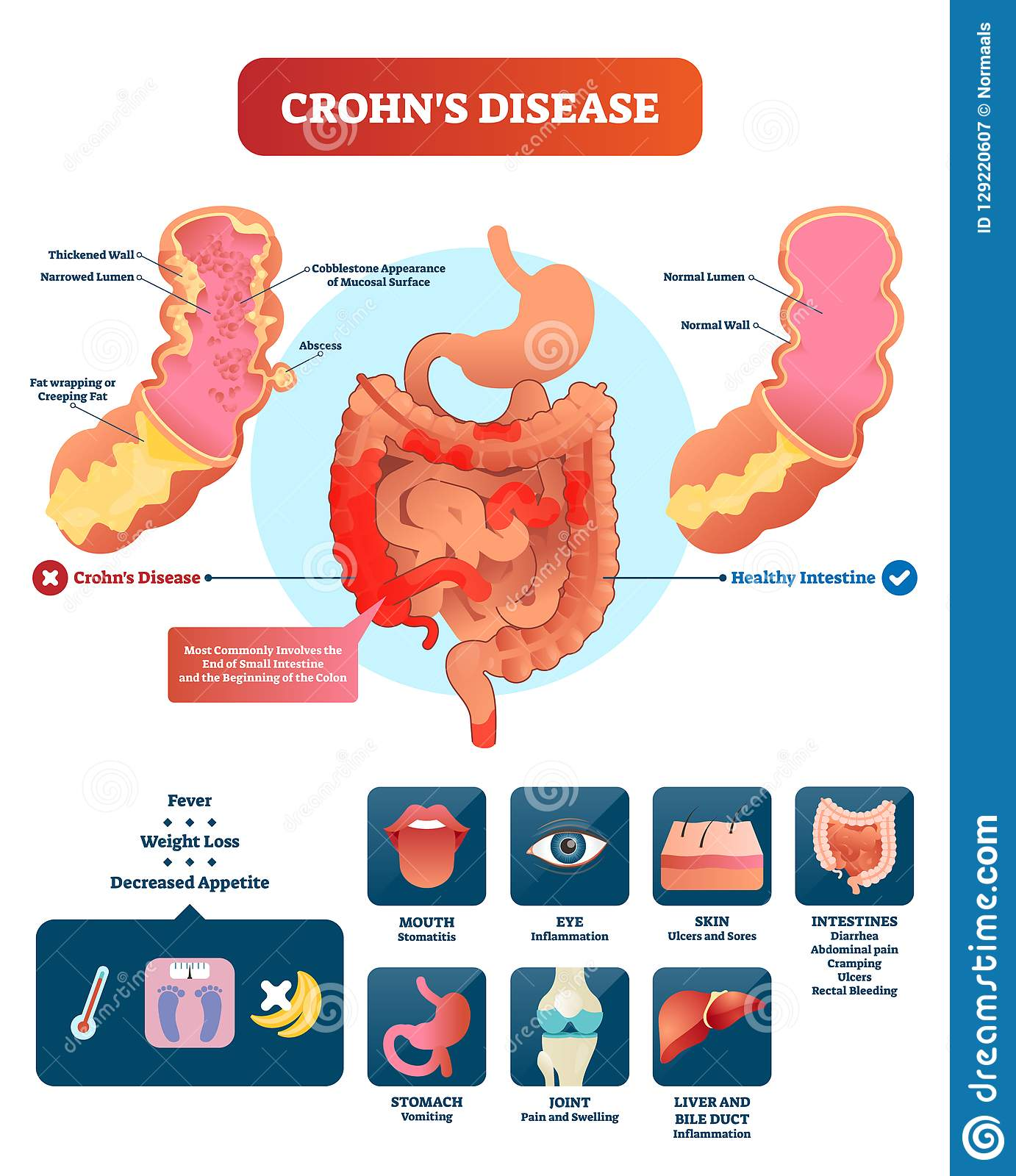 hight resolution of crohns disease vector illustration labeled diagram with diagnosiscrohns disease vector illustration labeled diagram with diagnosis