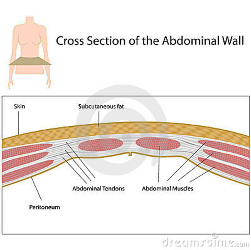 Layers Of Abdominal Wall Diagram Cross Section Of Abdominal Wall Stock Vector