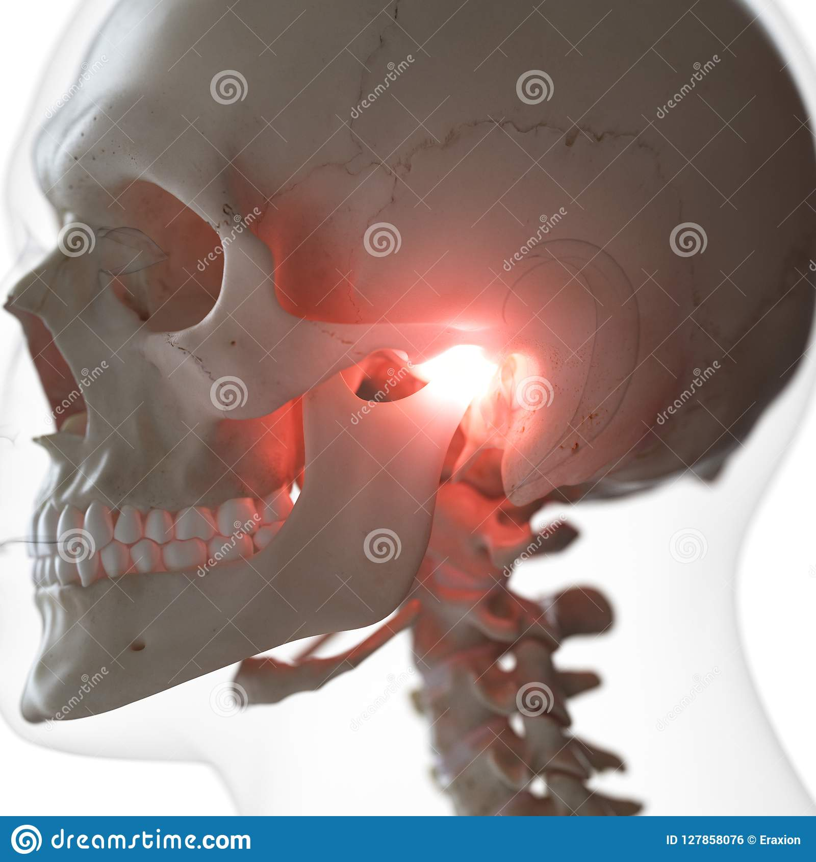hight resolution of 3d rendered medically accurate illustration of a painful temporomandibular joint