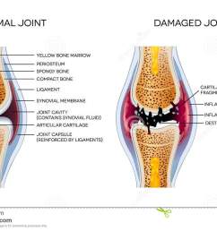 damaged joint and healthy joint [ 1300 x 874 Pixel ]