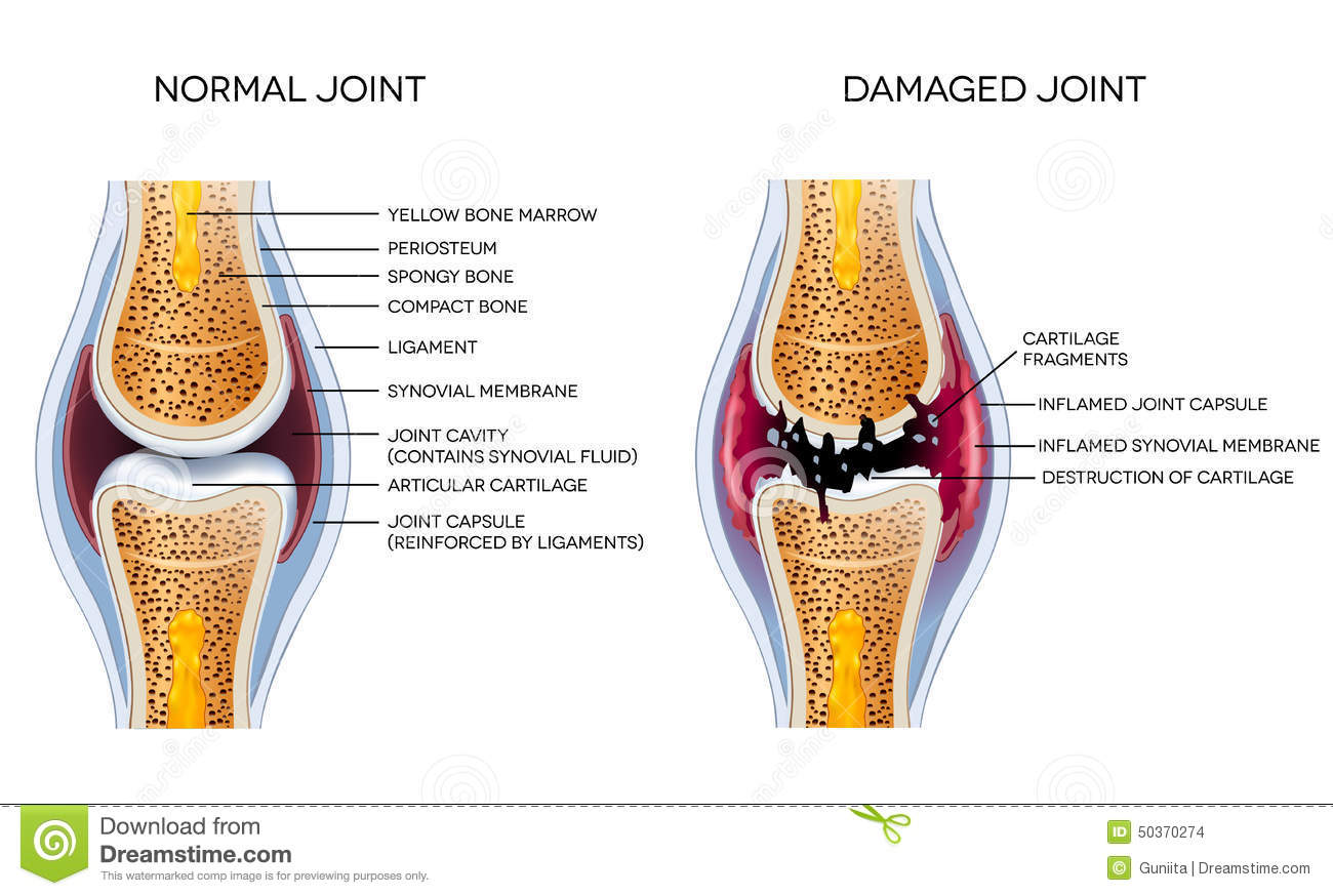 hight resolution of damaged joint and healthy joint