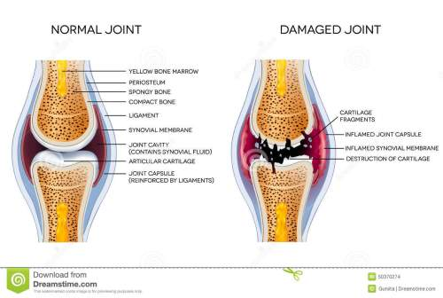small resolution of damaged joint and healthy joint