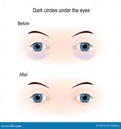 bags under eyes diagram simple wiring diagrams inner ear diagram dark circles under the eyes stock [ 1600 x 1689 Pixel ]